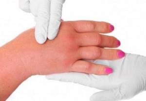 Тромбоз глубоких вен верхних конечностей симптомы лечение