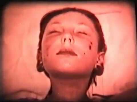 Аллергический васкулит у детей фото