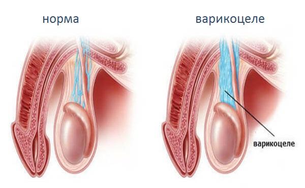 Лучшие домашние методы избавления от варикоцеле у мужчин лечение народными средствами