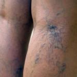 На ноге, на вене появилась шишка: что это такое и как лечить?