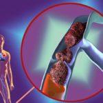 Постфлебитический синдром нижних конечностей