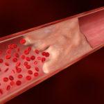 Как называются болезни вен на ногах?