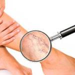 Отеки ног: причины и лечение у пожилых народными средствами