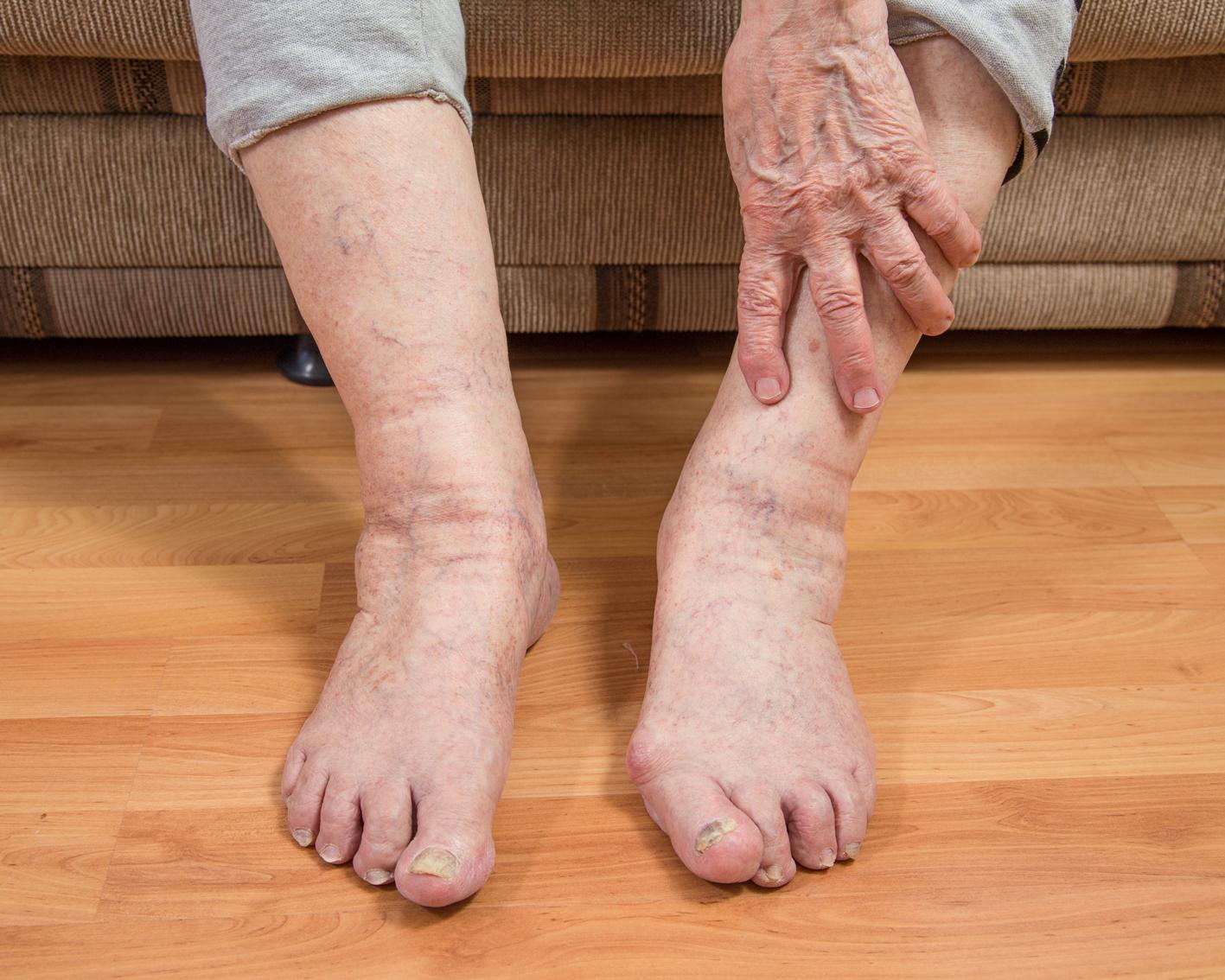 Как снять отек с ноги при варикозе в домашних условиях