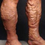Стали видны вены на ногах: причины