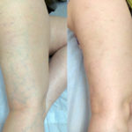 Что такое склеротерапия вен нижних конечностей?