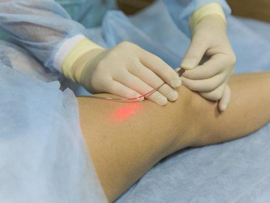 Нужно ли делать операцию при варикозе по удалению расширенных вен