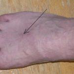 Как снять воспаление вен при варикозе на ноге?