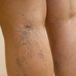 Как выглядит варикоз на ногах на начальной стадии: фото