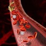 Симптомы и лечение тромбоза артерий нижних конечностей
