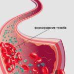 Что такое тромбоз нижних конечностей: причины, симптомы и лечение
