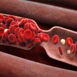 Признаки тромбоза сосудов: первые симптомы возникновения заболевания