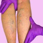 Тромбофлебит нижних конечностей: лечение народными средствами