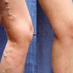Операция на венах ног лазером: отзывы
