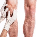 Пенная склеротерапия варикозно расширенных вен: что это такое?