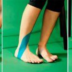 Кинезио тейп при варикозе: как правильно тейпировать ногу?