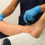 Как лечить трофические язвы на ногах при варикозе в домашних условиях?