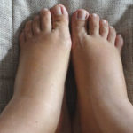 Как избавиться от отеков ног после родов?