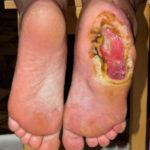 Венозные трофические язвы на ногах: что это такое и как их лечить?