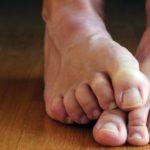 Причины и лечение онемения ног при варикозе