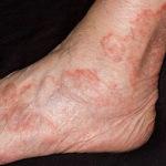 Почему чешутся вены на ногах при варикозе?