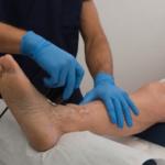 УЗИ артерий и вен нижних конечностей: что показывает обследование?