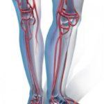 Триплексное сканирование вен нижних конечностей: что это такое?