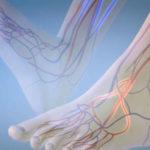 Как вылечить тромбофлебит нижних конечностей?