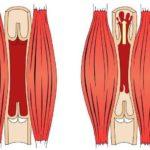 Как работают и что делают венозные клапаны?