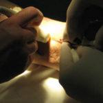 Что такое венэктомия: последствия и ход операции