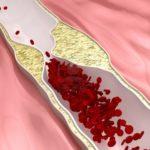 Народные средства для разжижения крови при тромбофлебите и тромбозе