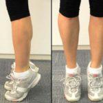 Упражнения при варикозе ног метод микулина