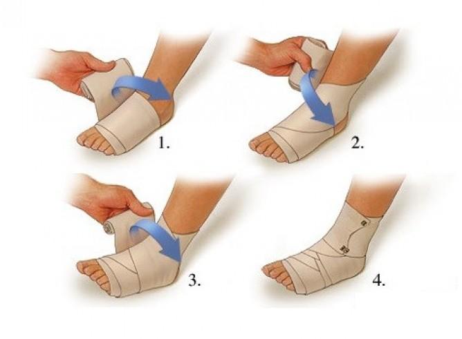 Бинтование ног эластичным бинтом при варикозе