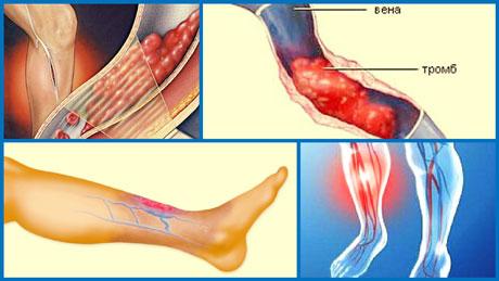 Тромбофлебиты поверхностных вен диагностика и лечение