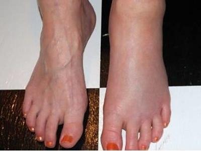 Почему отекает только левая нога
