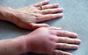 Методы лечения флебита вен на руках