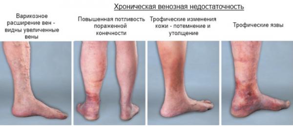 Илеофеморальный тромбоз