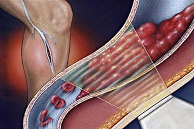 Анализы для диагностики тромбов