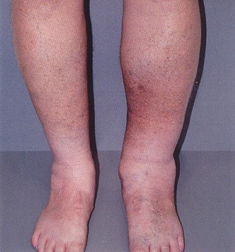 Воспалилась вена на ноге как лечить в домашних условиях