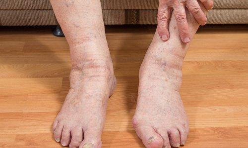 Причины отечности ног у мужчин