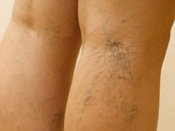 Почему при варикозе чешутся ноги и что с этим делать