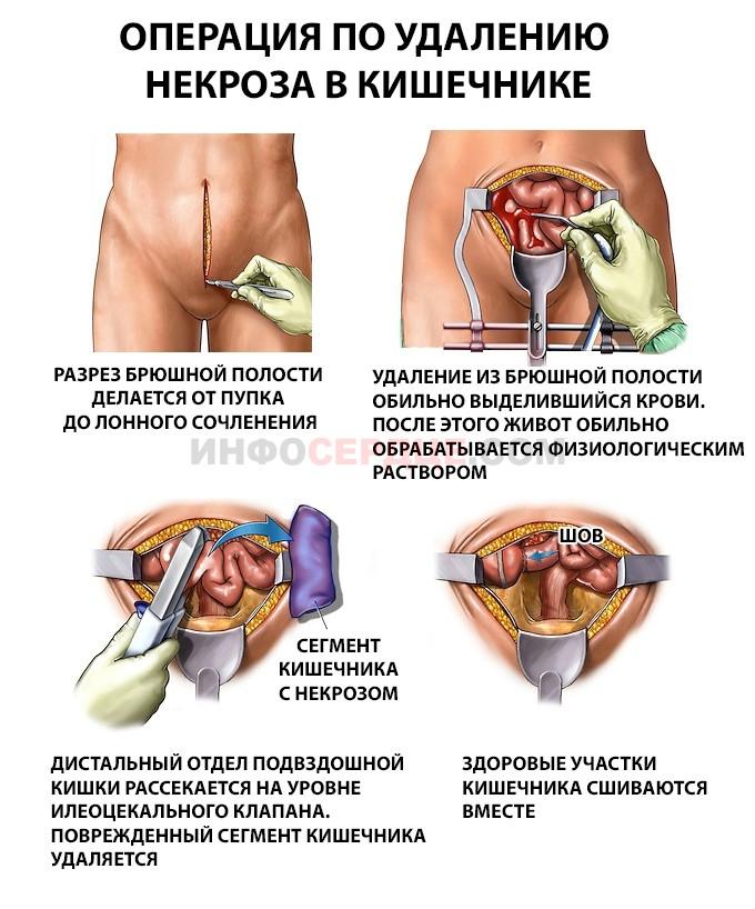 Тромбоз мезентериальных сосудов