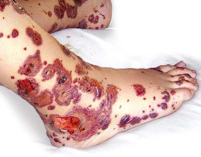 Геморрагический васкулит к какому врачу обратиться при болезни Шенлейна-Геноха