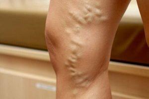 Мазь от тромбофлебита на ногах