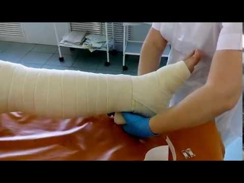 Как правильно бинтовать ноги при варикозе эластичным бинтом фото, видео советы