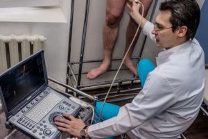 Отличительные особенности и лечение тромбоза подколенной вены