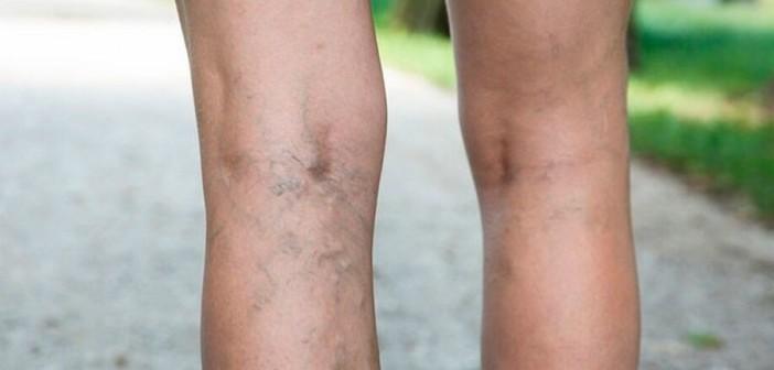 Судороги ног по ночам. Варикозное расширение вен. Лечение судорог. Народные средства