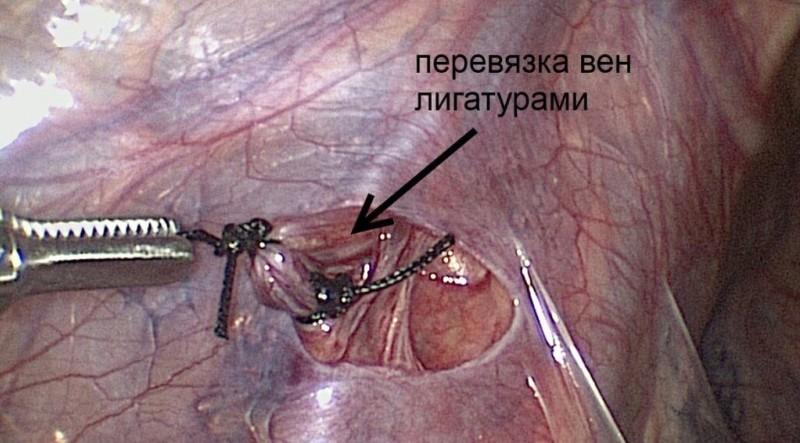 Суть операции Иваниссевича при варикоцеле, послеоперационный период